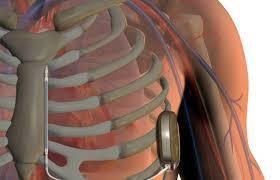 Имплантация Дефибрилляторов