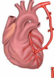 Аортокоронарное шунтирование и стентирование сердца