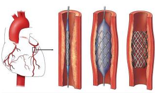 Коронарная ангиопластика при лечении ИБС