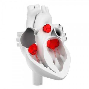Протезирование и реконструкция сердечных клапанов