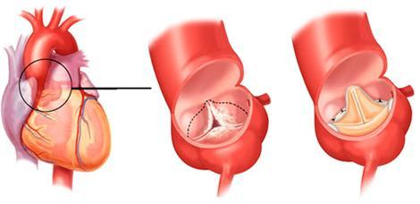 Протезирование и реконструкция сердечных клапанов за границей