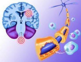 Медикаментозное лечение рассеяного склероза