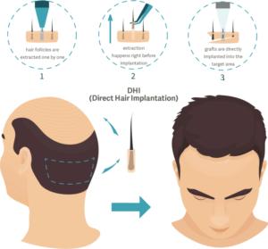 DHI пересадка волос в Турции
