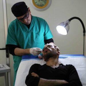 Консультация врача по пересадке волос в Турции
