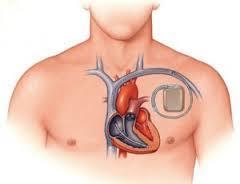 Имплантация кардиостимулятора при мерцательной аритмии