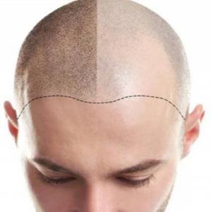 Методы трансплантации волос в Турции