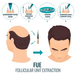 FUE пересадка волос в Турции