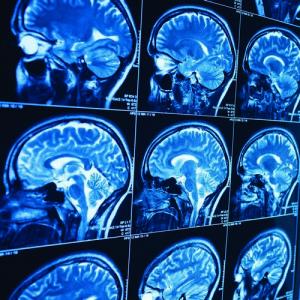 Диагностика опухоли головного мозга за рубежом