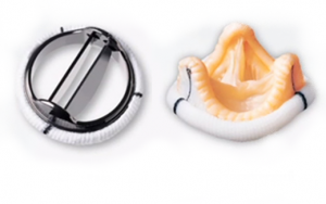 Замена клапана в Израиле и Германии, типы имплантов