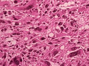 Рабдомиосаркома - результативность лечения