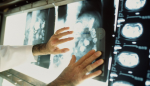 Глиобластома головного мозга - симптомы