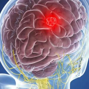 Астроцитома головного мозга - симптомы рака: головные боли, нарушение координации, судороги
