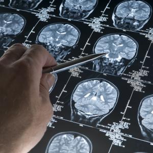 Эффективность таргетной терапии в лечении онкологии