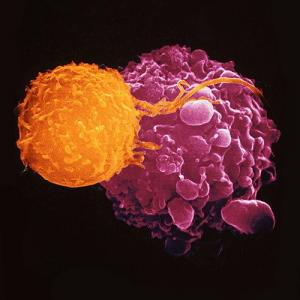 Иммунотерапия в Израиле, прививка от рака