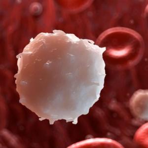 Рак крови, симптомы лейкемии