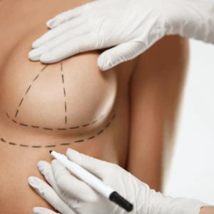 Коррекция формы груди в Турции